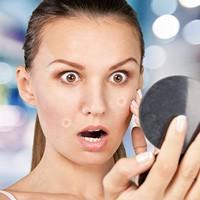 contrôler votre acné